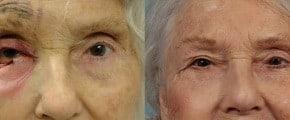 eyelid-repair