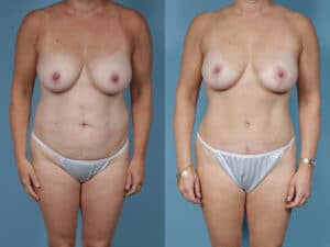 breast-lift-tummy-tuck