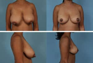 Chicago Before and After Breast Reduction