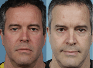 Male Eyelid Surgery Chicago
