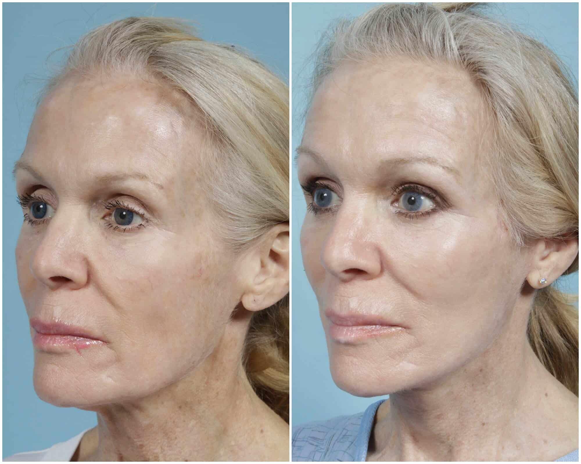 enhance-facial-fat